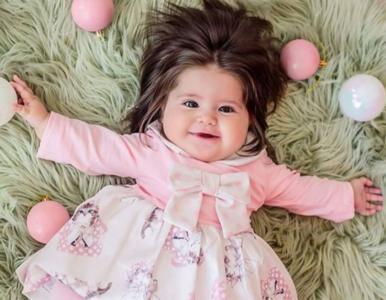 Dziewczynka urodziła się z bujną fryzurą. Pielęgniarki były w szoku, rodzice również
