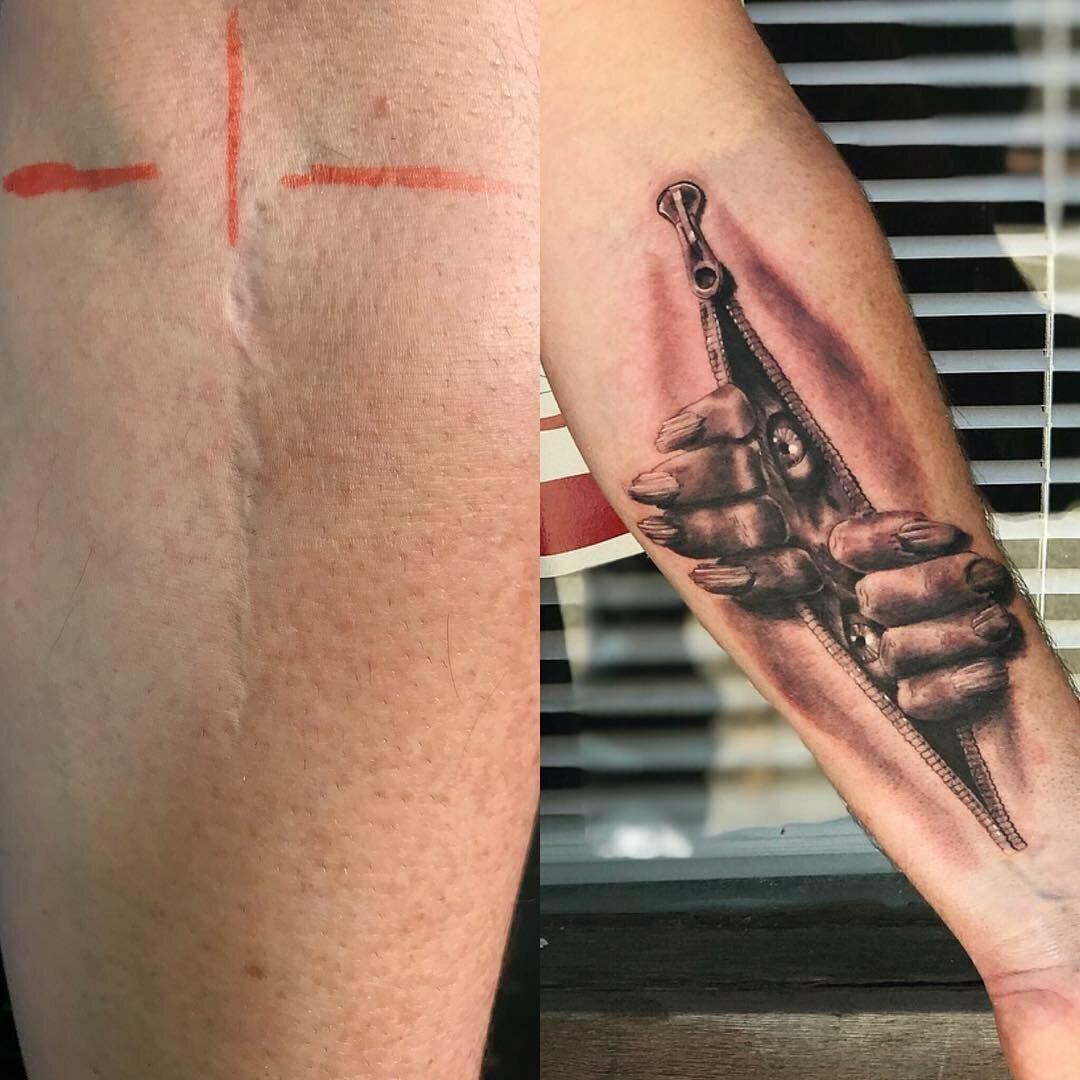 Tatuaż Tuszujący Blizny Galeria Zdjęć